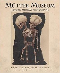 Mütter Museum Historical Medical Photographs #Medicine History & Commentary #History of Medicine #Trivia & Fun Facts
